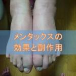 メンタックスクリーム・外用液・スプレー(ブテナフィン)の効果と副作用
