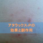 アタラックス-Pの効果と副作用【抗アレルギー薬】