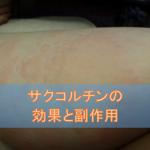 サクコルチン配合錠の効果と副作用【抗アレルギー薬】
