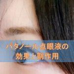 パタノール点眼液の効果と副作用【抗アレルギー点眼剤】