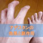 アデスタンクリームの効果と副作用【水虫・カンジダ治療薬】